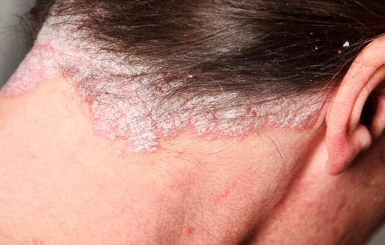 Psoriasis behind woman's neck